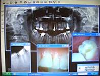 歯科専用CCDカメラの画像