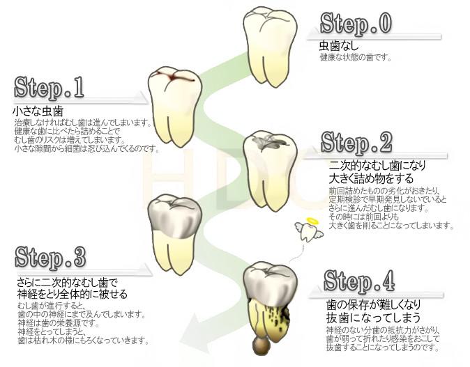 虫歯で歯が無くなっていく推移